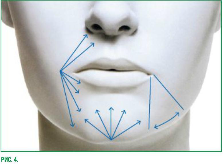Схема введения филлеров в носогубные складки